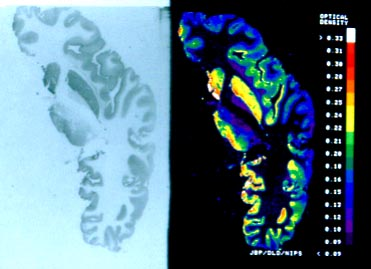 Human brain neurotransmitters i cut these horizontal hemispheric sections while on sabbatical at university of michigan the top right side ccuart Choice Image